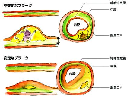頸動脈エコーは、動脈壁の隆起(プラーク)も観察できます。